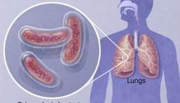 Día Mundial de lucha contra la tuberculosis: científicos platenses logran inhibir la Mycobacterium tuberculosis