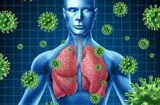 El coronavirus, mortal en Arabia Saudita, llegó a Europa