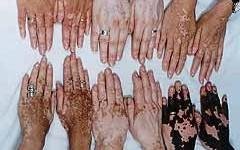 Hallan tratamiento para el encanecimiento y el vitiligo