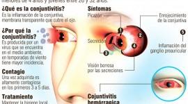 En la UBA desarrollan un compuesto para tratar la conjuntivitis