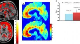 Antidepresivo podría ayudar en la lucha contra el mal de Alzheimer