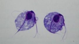 La tricomoniasis como una de las posibles causas de cáncer de próstata