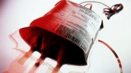 Un fármaco anticoagulante reduce las trasfusiones de sangre en la cirugía articular