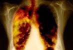 Posible, detectar en sangre genes de cáncer pulmonar