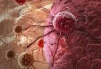 En el país, hay más de 100 mil nuevos casos de cáncer por año