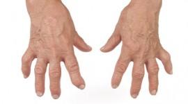 Un fármaco para la artritis reumatoide abre una nueva vía de tratamiento