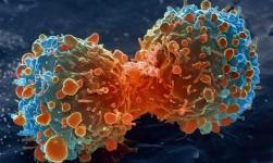 Estudio afirma que en 2013 aparecieron 14,9 millones de casos nuevos de cáncer en el mundo