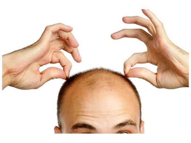 El tratamiento de los cabellos quemados