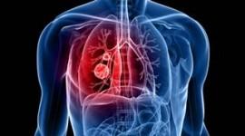 La FDA aprueba osimertinib para tratar cáncer de pulmón