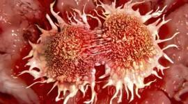 La combinación de radiación e inmunoterapia puede destruir tumores primarios y secundarios