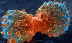 Más cerca de saber por qué el cáncer hace metástasis