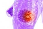 La melatonina podría ayudar a luchar contra el cáncer de mama