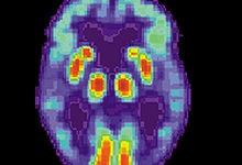Un fármaco antiinflamatorio podría tratar la enfermedad de Alzheimer