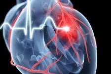 Un fármaco conocido desde hace décadas logra reducir las secuelas del infarto