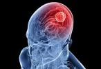 """Un estudio permite entender mejor cómo """"se alimentan"""" los tumores cerebrales"""