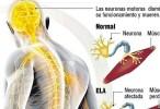 Identificado un fármaco que podría detener la progresión de la esclerosis lateral amiotrófica