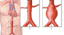 La proteína galectina-3, biomarcador del aneurisma aórtico abdominal
