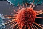 Una proteína podría ser el enlace entre inflamación y cáncer