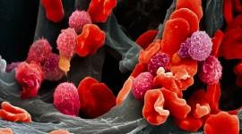 Identifican un mecanismo que frena avance del tumor pediátrico más frecuente