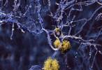 Investigación en Alzheimer: Hallan cómo revertir la formación de placas de beta-amiloide