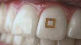 Un sensor adherido a un diente controla los niveles de glucosa, sal o alcohol que se consume