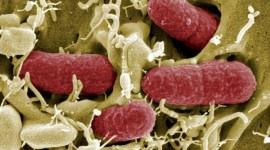 "El zinc modula la virulencia de la ""Escherichia coli"""