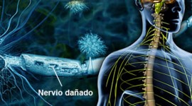 Desarrollan tratamiento pionero para el síndrome de Guillain-Barré
