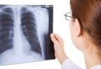 Tuberculosis en la Argentina: Datos del boletín epidemiológico del Ministerio de Salud