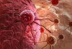 Primer fármaco capaz de prevenir las metástasis de cáncer de mama, próstata y pulmón