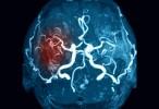 Desarrollan un gel capaz de desarrollar tejido cerebral tras un ictus
