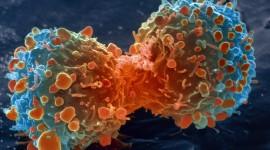 Una nueva clase de fármacos para el cáncer de mama podrían frenar la metástasis de otros tumores
