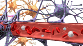 La leucemia linfoblástica aguda puede evadir la barrera hematoencefálica