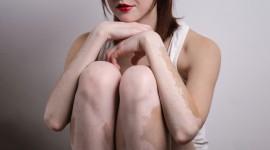 Investigan un nuevo tratamiento para revertir los síntomas del vitiligo
