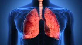 En investigación: La metformina podría revertir la fibrosis pulmonar idiopática