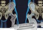 Denosumab: efecto rebote y otros efectos indeseados graves