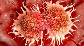Identifican el papel de las células inmunes en la formación de metástasis