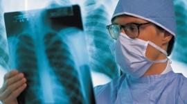 La vitamina D puede ayudar a tratar la tuberculosis resistente a fármacos, según un estudio