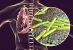 En investigación: Un nuevo antibiótico contra la tuberculosis podría reducir el tiempo de tratamiento