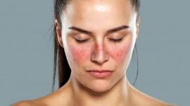 VGLL3, la molécula que hace que las mujeres sean más propensas a contraer lupus