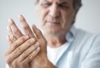 Las estatinas previenen eventos cardiovasculares en pacientes con artritis reumatoide