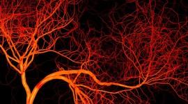 Un nuevo mecanismo que modula la angiogénesis favorece la terapia de la ECV