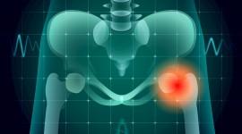 La ingesta de altas dosis de vitamina B6 y B12 puede aumentar el riesgo de fractura de cadera