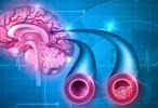 El control intensivo de la hipertensión puede retrasar el daño cerebral relacionado con la edad