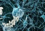 El Alzheimer se dirige a las células cerebrales que ayudan a las personas a mantenerse despiertas