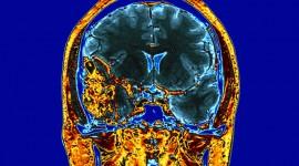 El gadolinio, el elemento que podría hacer que la radioterapia solo actúe sobre las células cancerosas