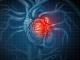 La colchicina reduce las complicaciones cardiovasculares tras un infarto de miocardio