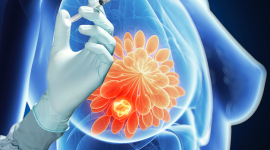 """La OMS """"certifica"""" por primera vez un biosimilar para el cáncer de mama"""