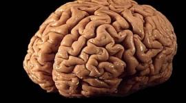 Estudio en JAMA Psychiatry: Olanzapina podría provocar alteraciones nocivas en la estructura del cerebro