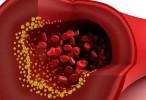 La hipertensión arterial altera la estructura de las arterias y acelera la aterosclerosis