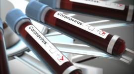 El tipo de sangre no tiene relación con la susceptibilidad o la gravedad del COVID-19